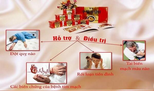 An cung tổ kén Hàn Quốc - Hỗ trợ điều trị và ngăn ngừu đột quỵ